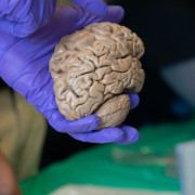 Image of a gloved hand holding a human brain.